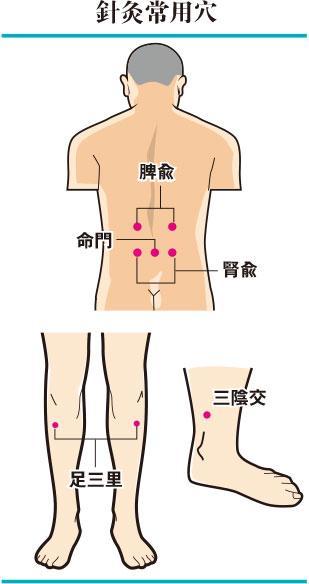 中药针灸养生壮骨益气补肾健脾-防止骨质疏松