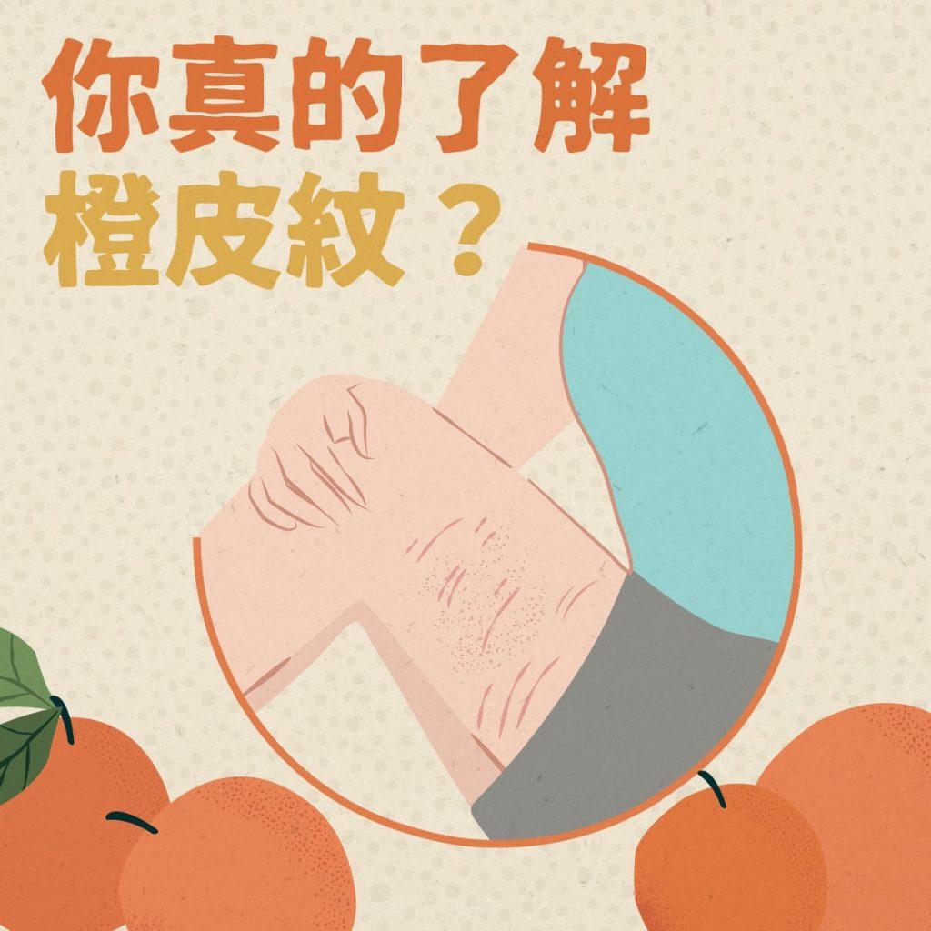 橙皮紋是這樣形成的 用抗橙皮紋乳霜有效嗎?消委會:使用前後注意3事項