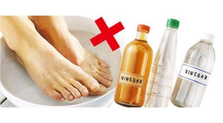 灰甲潮濕易翻發 浸醋無助擊退 醫師教用食療湯水進補促修復