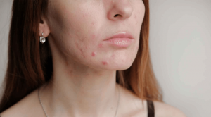 「口罩肌」焗出痘痘、皮膚敏感?植物油洗臉越洗越油?護膚4大注意事項