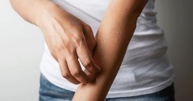 皮膚痕癢紅腫 濕疹發作怎辦?選擇潤膚膏保濕戒口有用嗎?醫生拆解關於濕疹的4個問題