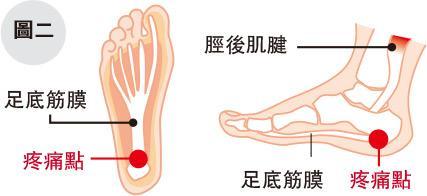 忍痛練跑後患無窮 錯誤跑姿欠肌力易招勞損 物理治療師4式運動提升肌力