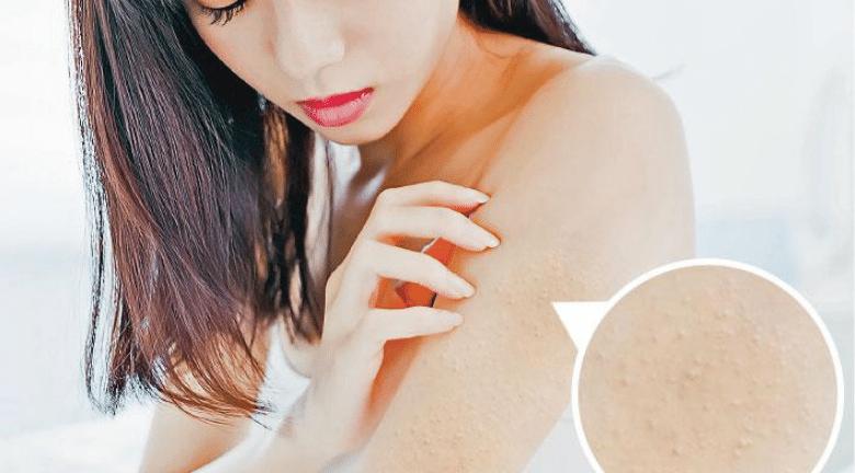 手臂、大腿起粒粒?毛囊角化vs.暗瘡 基因作怪斷尾難 勤潤膚助改善