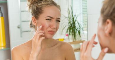 面紅眼痛 玫瑰痤瘡作怪?長期戴口罩加劇病情?