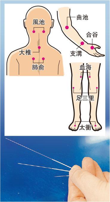 銀屑 v.s.牛皮癬丨中醫內外夾攻 中藥、外搽、針灸清熱袪紅斑